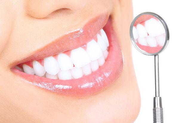 Dişleriniz sarı mı?